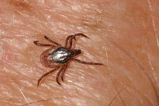 Virus de la Fiebre Hemorrágica de Crimea-Congo